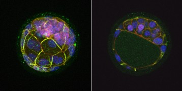 Mouse blastocyst displaying expression of Nanog genes